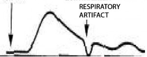 Graph of curve with an anomaly indicating a respiratory artifact.
